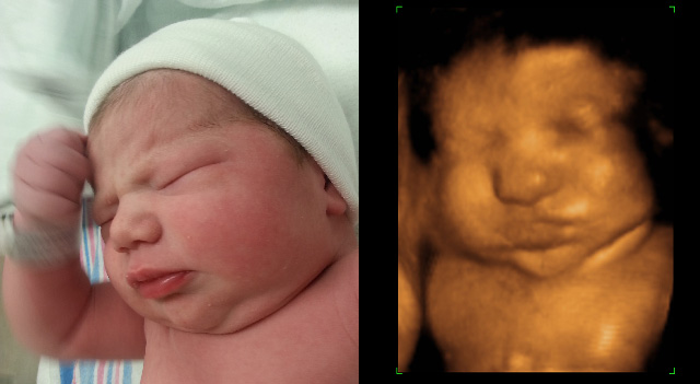 ... look the same in the 3D ultrasound as they will after they are born